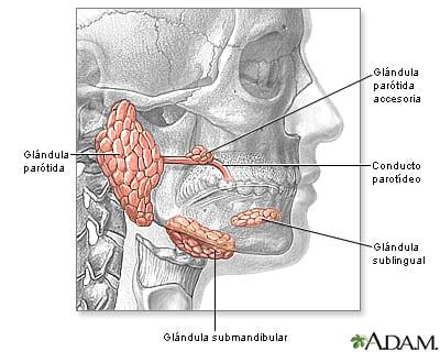 Inflamación glándulas parótidas salivales.