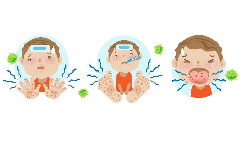 sintomas del virus manos pies y boca