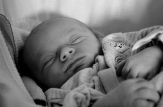 acne en bebes