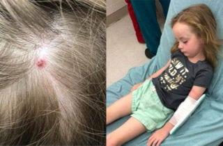 garrapata-causa-paralisis-a-una-nina-de-5-anos