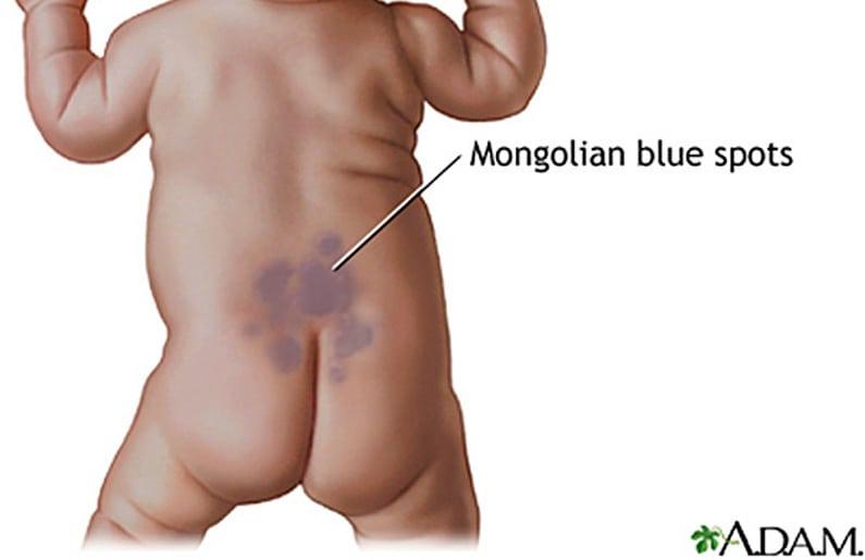 todo-sobre-la-mancha-azul-o-mongolica-en-recien-nacidos-05