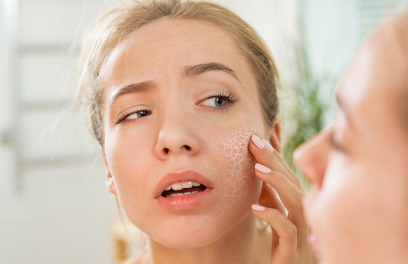 Decoloración y resequedaden la piel