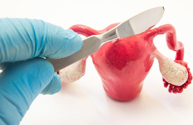 salpingoclasia-tipos-costos-y-beneficios