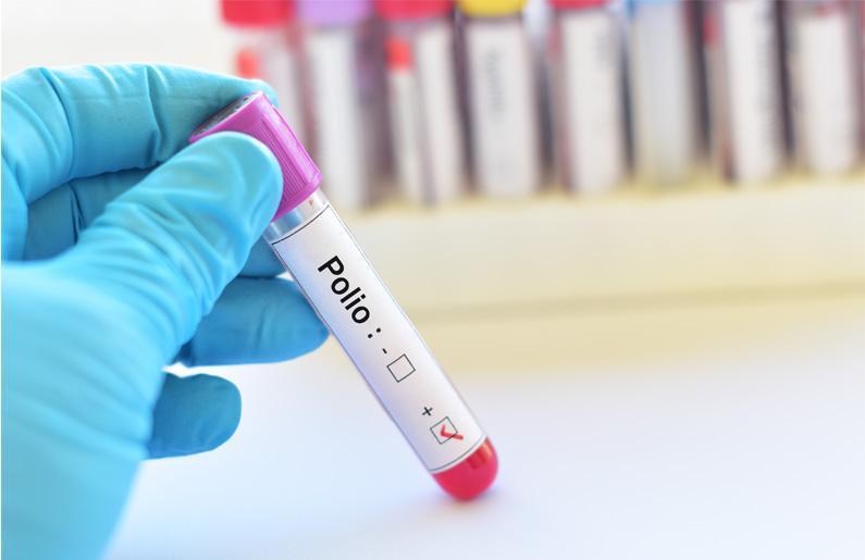 la-polio-todo-lo-que-necesitas-saber