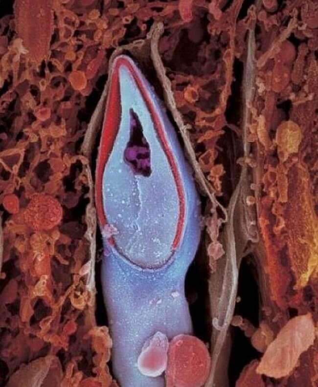 Cabeza de espermatozoide